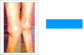 Hip Condition