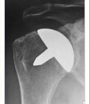 Resurfacing Shoulder Arthroplasty