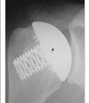 'Stemless' Shoulder Arthroplasty